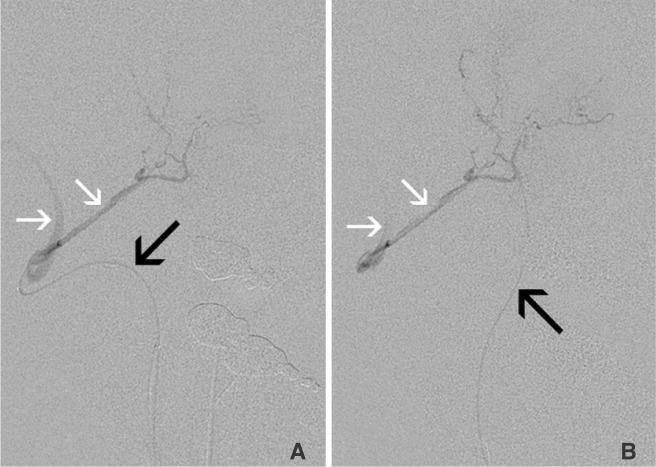 neuroint :: Neurointervention
